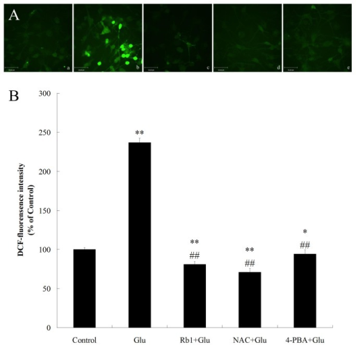 Effects of ginsenoside Rb1 on intracellular ROS accumulation induced by high glucose in hippocampal neurons.(A) Representative photographs of DCF staining in different groups. (a) control group; (b) high glucose group; (c) ginsenoside Rb1+high glucose group; (d) NAC + high glucose group;(e) 4-PBA + high glucose group. Magnification 400× ; Scale bar = 34μm. (B) DCF fluorescence intensity was quantitatively analyzed. All values are denoted as means ±S.D from six independent photographs shot in each group. Data are expressed as percentage of control group. The experiments were repeated three times independently. *P<0.05, as compared to the control group; **P<0.01, as compared to the control group; ##P<0.01, as compared to the high glucose group.