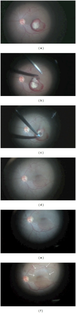 (a) Intact clot after posterior hyaloid peeling; (b) internal limiting membrane (ILM) peeling; (c) gentle suction of sub-ILM hemorrhagic-fibrinoid material; (d) retinal aspect after hemorrhage evacuation; (e) Brilliant Blue staining of the remnant ILM; (f) bleaching of the retinal tissue (white arrows) after enlargement of ILM peeling out of hemorrhage region edges.