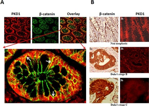 Expression of PKD1 is downregulated in colon cancer(A)Immunohistochemical analysis of PKD1 and β-catenin in colon tissues: Normal colon tissues were immunostained for PKD1 (red) and β-catenin (green). PKD1 expression was detected in the cytoplasm and membrane of colon cells, while β-catenin was primarily localized to the membrane. Co-localization of PKD1 with β-catenin was also detected (yellow). A magnified image of a single colon gland is shown to demonstrate co-localization of PKD1 and β-catenin (white arrows). Original magnification 200X. (B)Tissue microarray (TMA): Colon cancer TMA slides were stained for β-catenin (brown) and PKD1 (red). β-catenin staining revealed distinct change in subcellular localization in colon cancer. It was primarily localized on the membrane of non-neoplastic samples (1a), while distinct cytoplasmic and prominent nuclear staining was detected in Duke's stage B (2a) and Duke's stage C colon cancer, respectively (3a). PKD1 expression was strongly detected in non-neoplastic samples (1b, red). However, PKD1 was progressively downregulated in Duke's stage B (2b) and Duke's stage C (3b) colon cancer. Original magnification 400X.