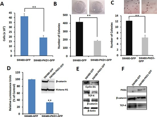 PKD1 overexpression decreases tumorigenic phenotypes by inhibiting the nuclear transcriptional activity of β-catenin in SW480 colon cancer cells(A)Cell proliferation. An equal number of SW480-GFP and SW480-PKD1-GFP cells were plated and after 48h the amount of ATP present in the metabolically active cells was measured using CellTiter-Glo Reagent. PKD1 overexpression decreased cell proliferation by over 50%. Mean ± SE; n=3; **p<0.05. (B)Anchorage dependent colony formation. SW480 cells overexpressing either PKD1 or GFP vector (2×103) were plated in 100mm dishes for 12 days and the average number of colonies formed was counted and graphed. PKD1 overexpression inhibited anchorage dependent colony formation in SW480 cells. Mean ± SE; n=3; **p<0.05. (C)Anchorage independent colony formation. SW480-GFP and SW480-PKD1-GFP cells (4×104) were seeded in 0.3% agarose and grown for 14 days. The number of colonies formed was enumerated and plotted. PKD1 overexpression decreased anchorage independent colony formation in SW480 cells. Mean ± SE; n=3; **p<0.05. (D)Effect of PKD1 overexpression on β-catenin transcription activity. Reporter luciferase assay was used to measure β-catenin transcription activity. The SW480-PKD1-GFP and SW480-GFP cells were transiently transfected with either a TCF-promoter-luciferase construct or a mutant TCF-promoter luciferase construct along with an internal control plasmid expressing Renilla luciferase gene. The β-catenin transcription activity was measured, normalized to the control Renilla luciferase activity and expressed as a ratio of TCF-promoter-luciferase activity to mutant TCF-promoter luciferase activity. The β-catenin activity of control SW480-GFP cells was set to 100%. PKD1 overexpression decreased the β-catenin transcription activity by over 70%. The inset depicts representative blots of nuclear lysates isolated from SW480-GFP or SW480-PKD1-GFP cells and probed for β-catenin expression. Histone H1 was used as internal control. PKD1 overexpression decreased nuclear β-catenin expression in SW480 cells. (E)Effect on downstream targets. Total protein isolated from SW480-PKD1-GFP or control SW480-GFP cells was resolved on gel and immunoblotted using specific antibodies. β-actin was used as loading control. PKD1 overexpression decreased Cyclin D1 and TCF-4 levels, both of which are downstream products of β-catenin/TCF transcription activity. (F)Immunoprecipitation (IP). Equal amounts of nuclear extract isolated from the PKD1 overexpressing cells or control cells were subjected to IP using anti-TCF-4 antibody. The immune-complexes were resolved on gel and sequentially probed for β-catenin, TCF-4 and PKD1. PKD1 overexpression decreased the amount of TCF-4/β-catenin complex in the nucleus.