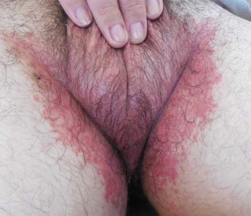 Post-treatment (presence of erythema with no signs of vesicopustules). (Copyright: ©2014 Paulo Filho et al.)