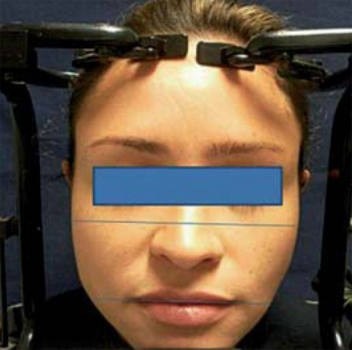 Figure showing how to measure middle and lower thirds of the face – at the levelof the zygoma and of the commissure of the lips, respectively
