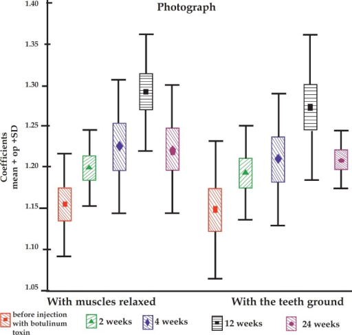 Graphic presentation of mean coefficients with the muscle relaxed (left) and withthe teeth ground (right) showing progressive facial thinning that reached its peakat 12 weeks and reduced at 24 weeks.