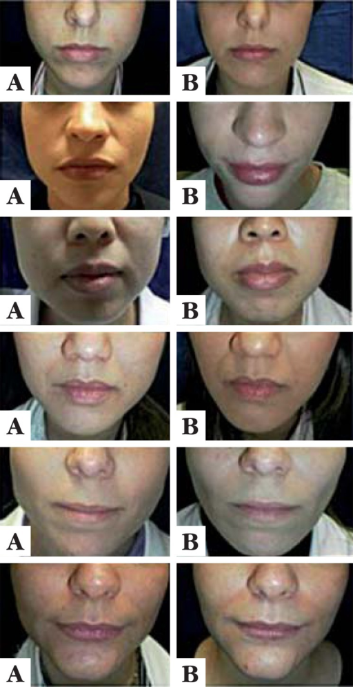Examples of results – images obtained before treatment on the left(A) and after 3 months on the right (B)