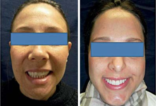 Smile asymmetry associated with smile limitation in 2 patients