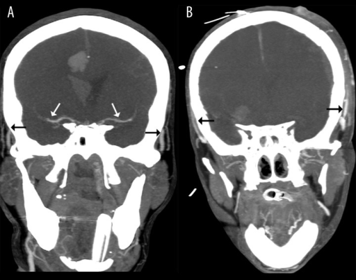 Positive results of CTA in the diagnosis of BD: (A) – 10-mm MIP in the coronal plane shows stasis filling with delayed opacification of proximal MCAs (white arrows); please note the simultaneous opacification of the superficial temporal arteries (black arrows) (B) – 10-mm MIP in the coronal plane shows no intracranial filling; these findings confirm the diagnosis of BD.