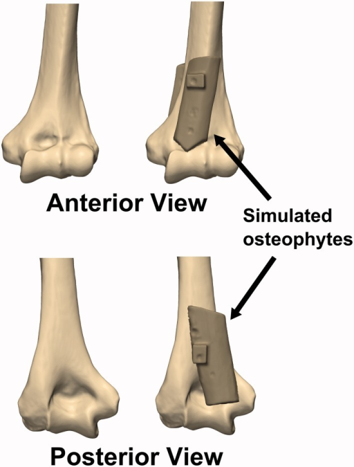 Simulated osteophytes made from harvested cortical bone were affixed to the anterior and posterior surface of the distal humerus. The simulated osteophytes were positioned such that they would partially obstruct the coronoid and olecranon fossae and impinge with the coronoid and olecranon tips during flexion and extension motions, respectively.