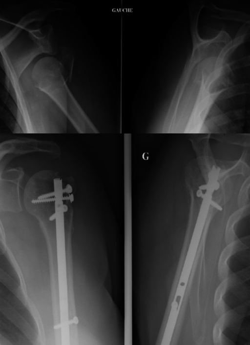 Dislocated valgus-impacted fracture (Neer 4-part, AST: A2D). Assembly with T4