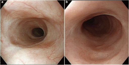 Typical endoscopic view 1 month after endoscopic submucosal dissection. Severe stenosis of the esophagus did not develop. The right picture (a) is a magnification of the left picture (b).
