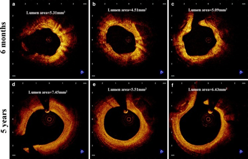 Optical coherence tomography images of coronary arteries from matched sites at 6 months (a–c) and 5 years (d–f) after BVS implantation