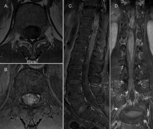Axial T1-weighted (TR=640 ms, TE=9.4 ms) noncontrast image at lower dorsal level (A) and following intravenous gadolinium administration, fat saturated, T1-weighted (TR=640 ms, TE=9.4 ms) axial (B), sagittal (C) and coronal (D) images demonstrate significant post-contrast enhancement of the lower cord and conus medullaris.