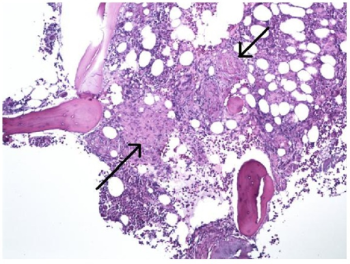 Bone marrow on low power (×200) shows multiple compact nonnecrotizing granulomas (black arrows). The surrounding tissue is comprised of hematopoietic cells with trilineage maturation and bony trabeculae (Hematoxylin and Eosin stain).