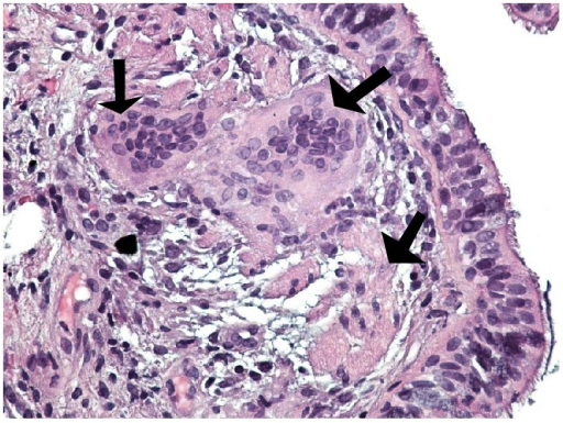 Lung peribronchial tissue on high power (×400) showing nonnecrotizing granuloma comprised mainly of multinucleated giant cells (black arrows) and epithelioid cells. The background shows ciliated pseudostratified columnar epithelium (Hematoxylin and Eosin stain).