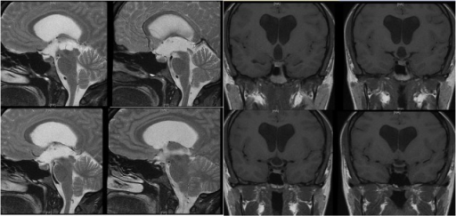 Patient imaging at presentation(Left) T2 weighted sagittal brain MRI demonstrating an enlarged multi-loculated cystic structure located in the third ventricle with worsened ventriculomegaly. (Right) T1 weighted non-contrast coronal brain MRI demonstrating an enlarged multi-loculated cystic structure located in the third ventricle with worsened ventriculomegaly.