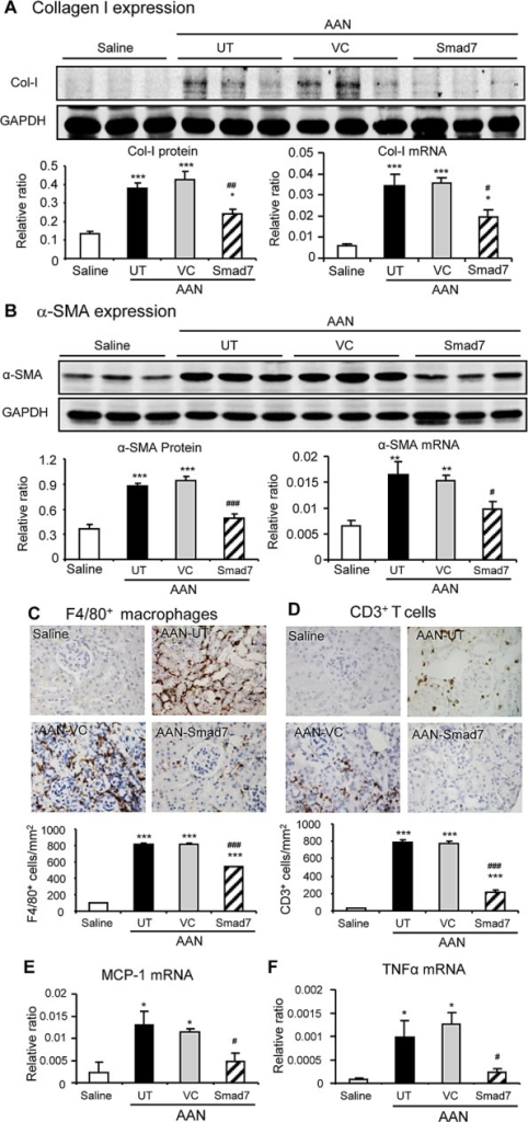 Restored renal Smad7 inhibits AA-induced renal fibrosis and inflammation in Smad7 KO mice at day 42 after induction of AANA and B: Renal collagen I and α-SMA mRNA and protein expression by real-time PCR and western blot analysis. C and D: Renal infiltration of F4/80+macrophages and CD3+ T cells detected by immunohistochemistry. E and F: MCP-1 and TNFα mRNA expression detected by real-time PCR. Results show that compared to Smad7 KO mice with chronic AAN without treatment (AAN-UT) or treated with vector control (AAN-VC), restored renal Smad7 on Smad7 KO with AAN (AAN-Smad7) largely blocks renal fibrosis and inflammation. Data are expressed as mean ± SE for groups of 6 mice. *P < 0.05, **P < 0.01, ***P < 0.001 compared with the saline control mice. #P < 0.05, ##P < 0.01, ###P < 0.001 compared with Smad7 KO mice with chronic AAN treated with or without VC. Magnification: x400.