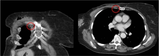 Right IMN >5 mm in short axis in a patient with prominent axillary adenopathy.