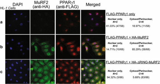 MuRF2 alters nuclear localization of PPARγ1 in a ubiquitin ligase region (RING)-dependent manner without altering steady state protein levels (as found in vivo). Increased MuRF2 alters PPARγ1 localization from primarily nuclear a to increased cytosolic/perinuclear localization b in HL-1 cardiomyocyte-derived cells. MuRF2 lacking ubiquitin ligase activity (∆RING FingerMuRF2, c does not alter PPARγ1 localization compared controls (top row), indicating MuRF2's dependence on its ubiquitin ligase activity in mediating these changes. Representative of three biological replicates. Right Percentages based on the number of cells analyzed (N = 58, 68, and 88 in FLAG-PPARγ1, FLAG-PPARγ1 + HA-MuRF2, and FLAG-PPARγ1 + HA-∆RING-MuRF2 groups, respectively).