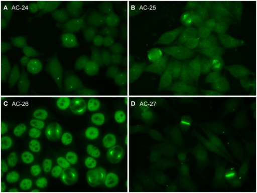 Representative images of mitotic HEp-2 cell patterns. (A) centrosome (AC-24); (B) spindle fibers (AC-25); (C) NuMA-like (AC-26); (D) contractile ring and intercellular bridge (AC-27).