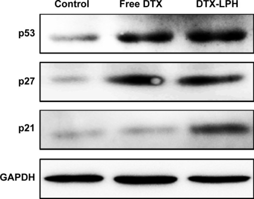 Protein quantification of p21, p27, and p53 expression in MDA-MB-231 cells by Western blotting after 24 hours incubation of free DTX or DTX-LPH nanoparticles at DTX concentrations of 10 μg/mL.Abbreviations: DTX, docetaxel; DTX-LPH, docetaxel-loaded lipid polymer hybrid.