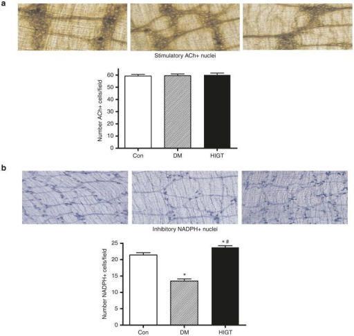 Abundance of stimulatory (ACh) and inhibitory (NADPH oxidase) staining nuclei were assessed in colonic segments from control, DM, and HIGT-treated mice. (a) There was no difference in the number of nuclei of stimulatory (ACh) neurons across conditions. (b) The number of inhibitory (NADPH oxidase) neurons was diminished among DM animals, and this diminution was abrogated among HIGT treated animals. *P < 0.05 versus Con; #P < 0.05 versus DM, n = 6–10. Con, control nondiabetic mice; DM, diabetic mice; HIGT, hepatic insulin gene therapy.