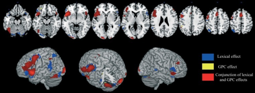 "Brain activation data. The cerebral areas that are specifically associated with lexical processing (in blue), sublexical processing (in yellow), and with both reading procedures (in red) are displayed on an anatomical template image (the ""ch2better"" template image in MRICron; Rorden and Brett, 2000)."