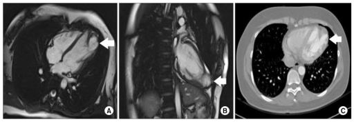 (A) Cardiac magnetic resonance imaging demonstrates a congenital LVD (arrow). (B) Coronal section. (C) Computed tomography angiography demonstrates a congenital LVD (arrow). LVD, left ventricular diverticulum.