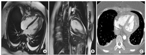 (A) Postoperative cardiac magnetic resonance imaging demonstrates thorough obliteration of the congenital left ventricular diverticulum. (B) Coronal section. (C) Postoperative computed tomography angiography.