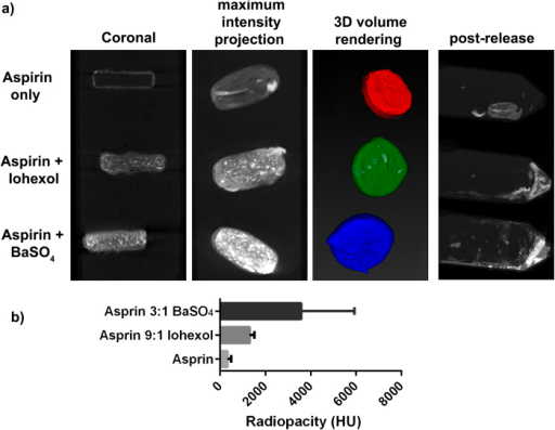 (a) CT images showing coronal CT slices, a reconstructed maximum intensity projection, and 3D volume rendering of the Aspirin tablets coated with the iron wax composite, embedded in 2% agar. Addition of Iohexol or BaSO4 improved CT visibility. Post-release images showed the degradation of the coating completely and the partial dissolution of the aspirin template. (b) Quantification of radiopacity of aspirin tablet with iron wax coating, and aspirin table incorporating 25% w/w BaSO4 or 10% w/w Iohexol. Error bars represent the standard deviation in Hounsfield units of all pixels in the 3D region of interest shown segmented in the 3D volume render image in (a).