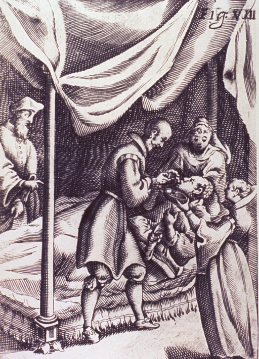 <p>A patient, lying in bed, is having his/her tongue bled; a young woman is holding a bowl as the surgeon applies the lancet to the patient's tongue.</p>
