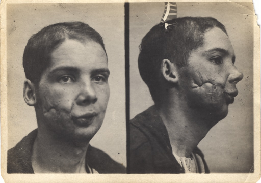 <p>Black and white photograph of injured soldier with facial wounds posing at two different angles. The right side of patient's chin has extensive damage and appears to have been sutured.</p>
