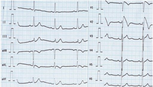 Twelve lead surface ECG showing typical coved-type ST-elevation in right precordial leads