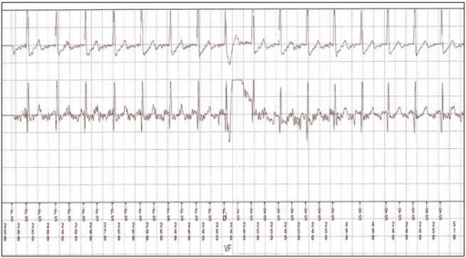 Electrocardiographic recording of oversensing of T waveresulted in the misdiagnosis of sinus tachycardia as ventricular fibrillation