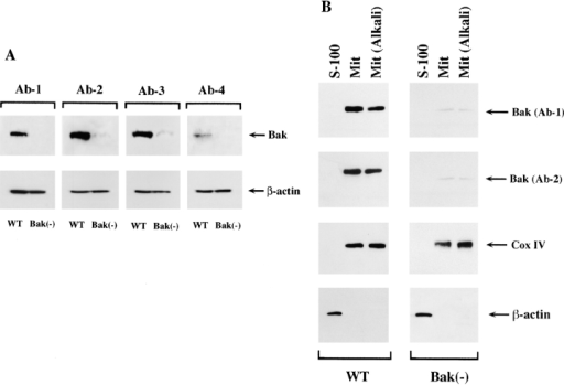 Deficient expression of Bak in a clonal Jurkat cell line. (A) Wild-type or the variant Jurkat cell line, Bak−, were incubated in 1% NP-40 lysis buffer for 30 min at 4°C. The resultant lysates which contained both cytoplasm and mitochondria, were resolved by SDS/PAGE and assessed by immunoblotting for the presence of Bak. Four different anti–human Bak Ab were used for blotting. The membranes were stripped and reprobed for β-actin to demonstrate equal loading. (B) Expression of Bak in mitochondria of wild-type, but not in mitochondria of Bak-deficient Jurkat cells. Expression of Bak was examined in cytosol (S-100), purified mitochondria, or purified mitochondria treated with alkali to remove nonspecifically attached proteins. These cell fractions were resolved by SDS/PAGE and immunoblotted sequentially by Bak-specific Ab-1 and Ab-2. After additional stripping, the membranes were probed with anti–Cox IV Ab, as a marker for mitochondrial fractions, and with anti–β-actin as a marker for cytosolic proteins.