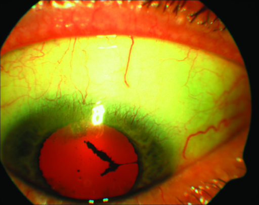 Right cornea showing stromal opacity with vascularisation in the superior aspect.