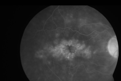 Figures 2 and 3: Fundus flourescein angiogram showing classical appearance of cystoid macular oedema in the left eye (fig 2) and right eye (fig 3)