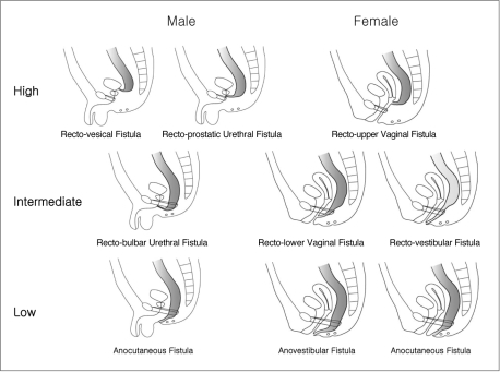 ... internal fistulas for male and female imperforate anus is presented