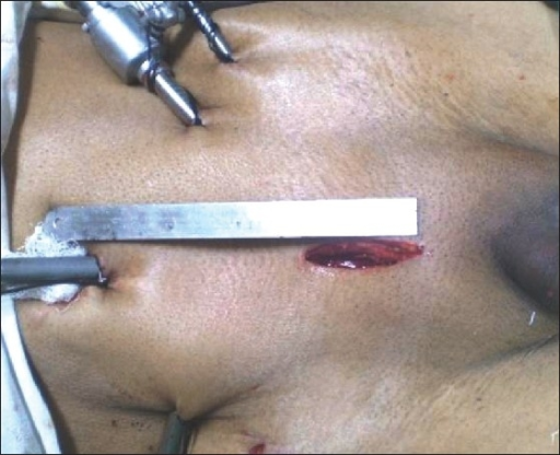 Postoperative photograph of the incision length and port site