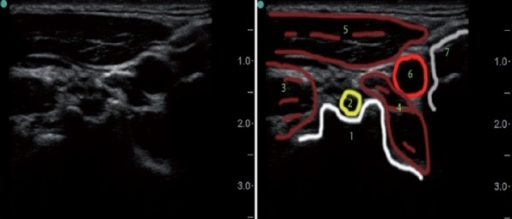 lateral axial ultrasound neck image at the c4 vertebral