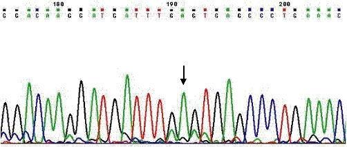Electrophorogram of the sense strand nucleotide sequence of the SLC37A4 gene. The arrow indicates Guanine → Adenine substitution at codon 50 in exon 1, resulting in the p.G50E missense mutation.