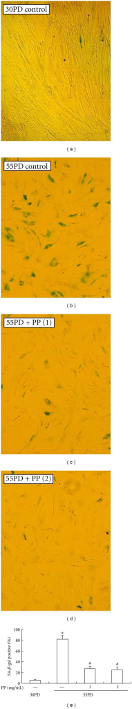 SA-β-gal staining of 2BS cells grown from PD30 in DMEM supplemented with 1 mg/mL or 2 mg/mL pine pollen (PP). Cells of none-confluent state were washed with PBS, fixed with 3% formaldehyde, and stained in staining solution containing 1 mg/mL 5-bromo-4-chloro-3-indolyl-β-D-galactoside for 16 h. 2BS cells at PD30 were set as young control. Cells were microphotographed at a magnification of 10 × 10. *P < 0.01 versus 30PD control group; #P < 0.01 versus 55PD control group.