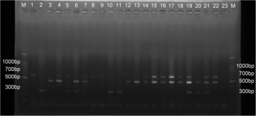 Ethidium bromide-stained agarose gel showing multiplex PCR assay for molecular identification. M: Maker; Positive control products from Cx. pipiens complex are shown in lanes1-7. Lane 1 (Cx. pipiens pipiens from Urumchi, Xinjiang, 610 bp); Lane 2 (Cx. pipiens quinquefasciatus from Dali, Yunnan, 274 bp); Lane 3 (Cx. pipiens pallens from Beijing, 478 bp); Lane 4 (Cx. pipiens pipiens &Cx. pipiens pallens, 1 ul ofeach DNA, 610 bp &478 bp); Lane 5 (Cx. pipiens pipiens &Cx. pipiens quinquefasciatus,1 ul of each DNA, 610 bp&274 bp); Lane 6 (Cx. pipiens quinquefasciatus&Cx. pipiens pallens, 1 ul of each DNA,274 bp&610 bp); Lane 7 (Cx. pipiens pipiens&Cx. pipiens pallens&Cx. pipiens quinquefasciatus, 0.67 ul of each DNA, 610 bp&274 bp&478 bp), respectively. Mosquitoes from Lhasa city and other provinces are shown in lanes 8–22, respectively. Lane 23, negative control. Outside lanes are 100 bp DNA ladders. bp = basepaires.