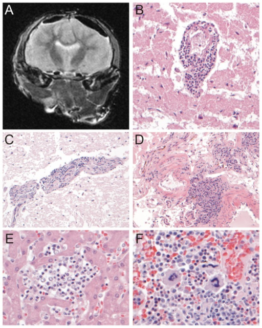 Evaluation of the presence of lesions by MRI and histology.A.Transverse T2-weighted MR image of the brain of seal 12-410. No gross abnormalities were detected in the brain parenchyma (the subdural hypointense areas are compatible with air due to post-mortem preparation). B, C, D. Perivascular cuffing with inflammatory cells distending the Virchow-Robin space in the brain parenchyma (B, C) and in the meninges (D). The infiltrates consisted mainly of mononuclear cells. E. Infiltrates of neutrophils and mononuclear cells in the liver parenchyma. F. Megakaryocytes and rubricytes in the spleen associated with extramedullary hematopoiesis. H&E stained slides, original magnification B, C, D: 200x; E, F: 400x.