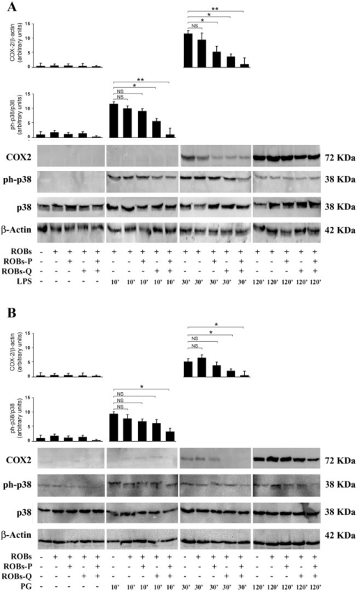 Modulated activation of pro-inflammatory MAPK p38 signaling and inducible COX-2 on ROBs-QP treated DCs.DCs were cultured in the presence of either ROBs-P, ROBs-Q or ROBs-QP as mentioned previously; empty ROBs were used as control. LPS (A) or PG (B) was administered at indicated time points. DC lysates were subjected to immunoblotting with antibodies to detect total and phosphorylated forms of p38 MAPK and COX-2. Representative immunoblots from at least three independent experiments are shown for each condition. Each bar represents the mean ± SEM of densitometric analyses for phosphorylated proteins normalized to their respective total forms; *P<0.05, **P<0.01 vs. basal conditions.