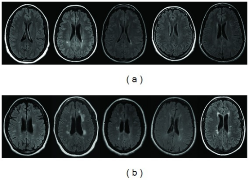 Patterns of the periventricular lesions on axial FLAIR images. Five representative patients with NMO are shown in (a): periventricular white matter is either devoid of lesions or contains smooth periventricular linear hyperintensity (with the exception of single patient). In contrast, five representative MS patients (b) demonstrate periventricular lesional patterns B, more compatible with focal perivenous inflammation.