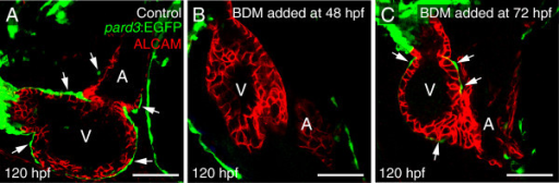 Inhibiting heartbeat impairs expansion of the epicardium. Lateral confocal images of zebrafish hearts at 120 hpf with anterior to the left. The epicardial marker, pard3, is green and ALCAM (cardiomyocytes) is red. Arrows in panels A and C indicate epicardial cells on the ventricle (n = 7 per group). (A) Control. (B) BDM added at 48 hpf and maintained to the end of the experiments. (C) BDM added at 72hpf and maintained to the end of the experiments. For all panels, V is ventricle; A, Atrium. Scale bars = 50 microns.