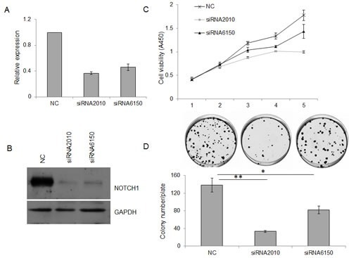 Knockdown of NOTCH1 inhibits the proliferation of SACC-83 cellsA-B, 48 h after siRNA transfection, the expression of NOTCH1 in SACC-83 cells was measured by real-time PCR (A) and Western blot (B); C-D, After siRNA transfection, the proliferation of SACC-83 cells was detected by CCK-8 reagent (C, P<0.05 at day 3, and P<0.01 at days 4 and 5) and colony formation assay (D).