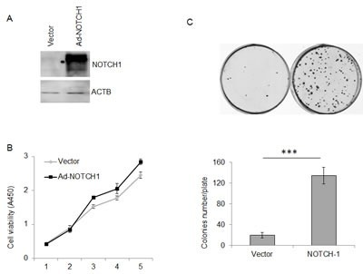 Overexpression of NOTCH1 promotes the proliferation of SACC-83 cellsA, Western blot analysis of the overexpression of NOTCH1 in SACC-83 cells infected with adenoviral vector at an MOI of 5-10; B-C, After adenoviral infection, the proliferation of SACC-83 cells was detected by CCK-8 reagent (B, P<0.05 at days 3, 4 and 5) and colony formation assay (C, P<0.01, n=3).