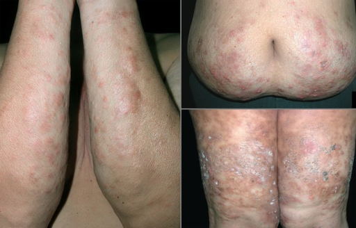 Extensive cutaneous nodules and plaques over trunk and extremities. (Copyright: ©2014 Pattanaprichakul et al.)