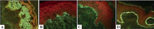 Direct immunofluorescence staining patterns: A: intercellularintraepidermal staining; B: granular staining at dermal papillae; C:linear continuous basement membrane zone staining; D: homogeneouscontinuous basement membrane zone staining