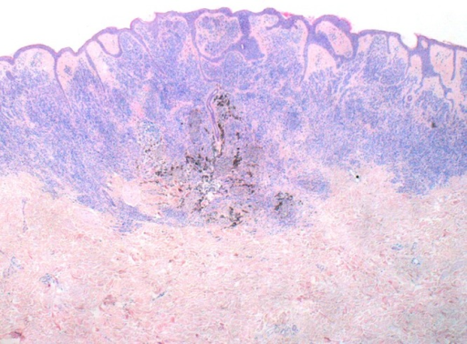Low power image shows a well circumscribed, wedge-shaped intradermal melanocytic proliferation comprised predominantly of bland nevus cells, however, with a central zone of more epithelioid cells, surrounded by a rim of hyperpigmented melanophages. (Copyright: ©2014 Inskip, Magee.)